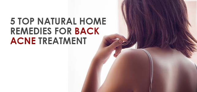 back-acne-treatment-home-remedies