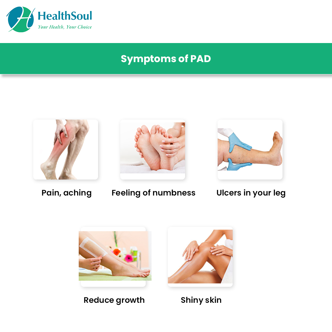 Peripheral Artery Disease Symptoms And Treatment