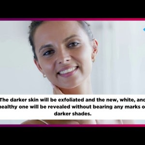 Disadvantages and Advantages of Laser Technology in Removing Dark Spots | Laser in Skin Whitening