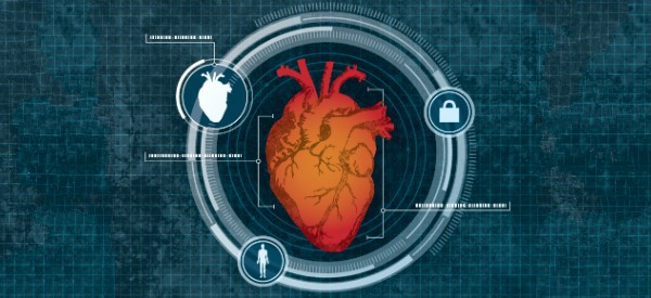 Report: Remote Monitoring Is the Future for CVD Management