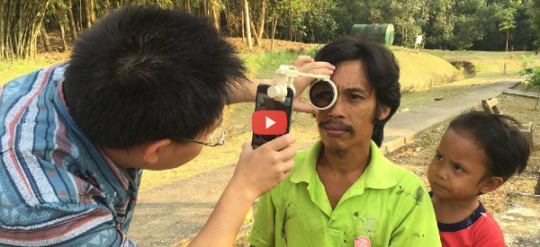 Affordable 3D-Printed Eye Care Kit [video]