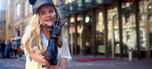Affordable 3D Printed Bionic Arms for Children