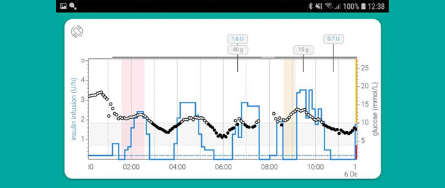App Supports Artificial Pancreas Devices