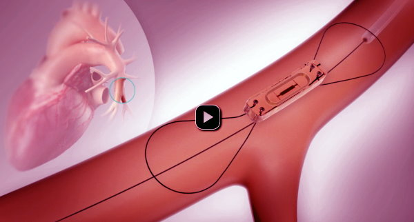 Implant Monitors Heart Failure