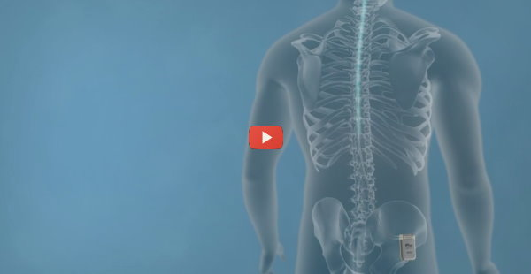 Back Pain Implant Wins on Wall Street [video]