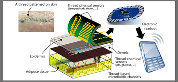 Smart Sutures Transmit Data While You Heal
