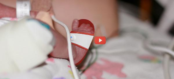 Tiny Sandal Saves Infant Lives [video]