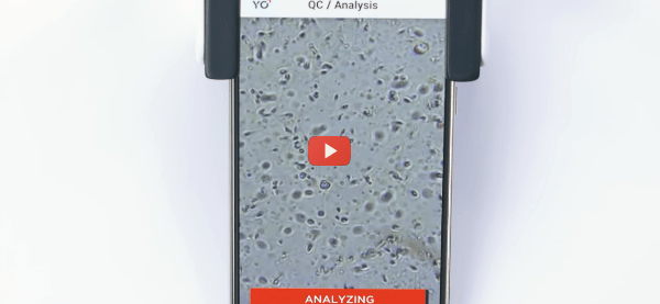 Smartphone-based Live Sperm Home Test [video]