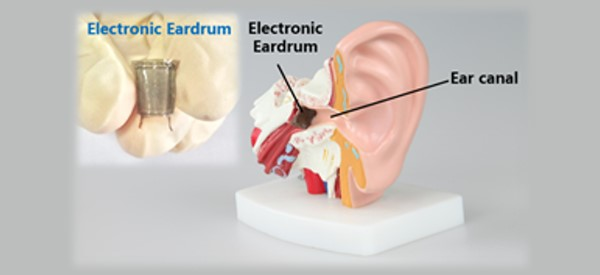Synthetic Eardrum to Provide Bionic Hearing