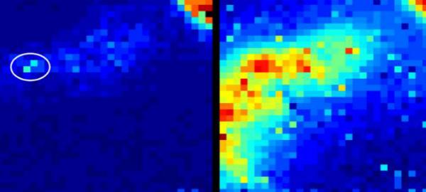 See-Through Body Cam Tracks Endoscopes