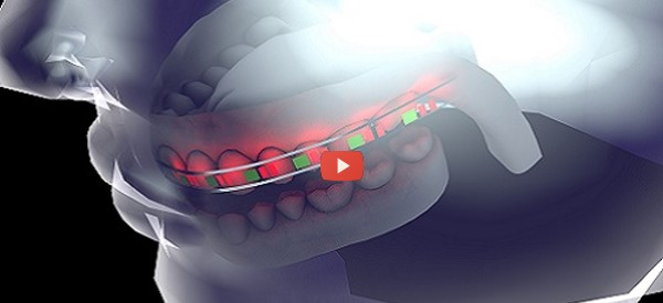 Flexible Battery Improves Smart Dental Device [video]