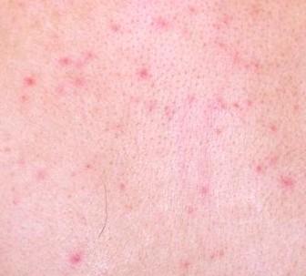 Lamictal Rash - Pictures, Symptoms, Causes, Treatment, Prevention