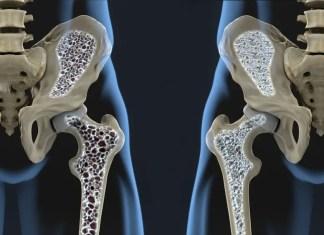 Osteopenia