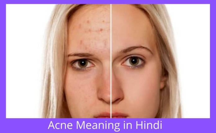 Acne Meaning in Hindi | Pimples on Back