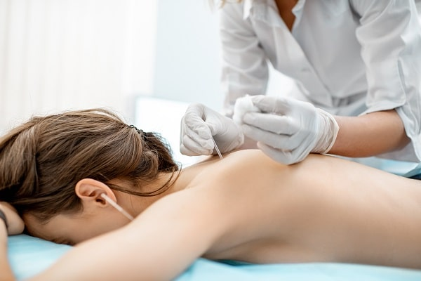 7 Things Acupuncture Can Fix