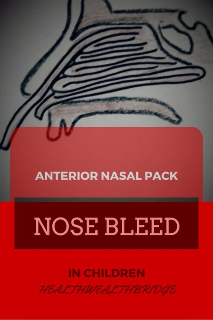 ANTERIOR NASAL PACKING FOR NOSEBLEED