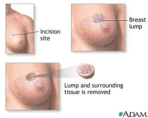 Lumpectomy – What to Expect During Your Lumpectomy