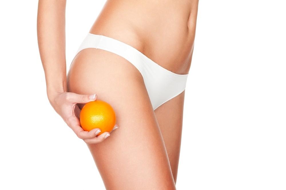 Cellulite: wat is het en wat kan je er aan doen?