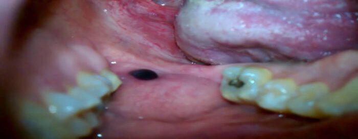 Causes of a black dot inside cheek
