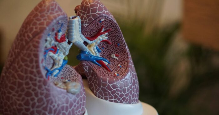 Reasons for Lung Transplant