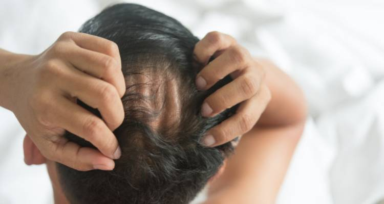Types of Alopecia areata