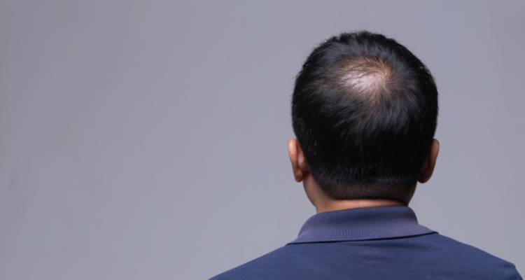 Signs and Symptoms of alopecia areata