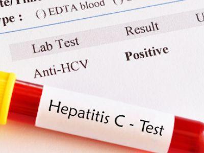 Laboratory diagnosis of Hepatitis C