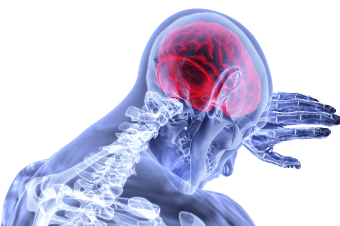 Types Of Stroke (And Major Causes Of Stroke)