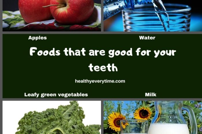 Good and Bad Foods For Your Teeth