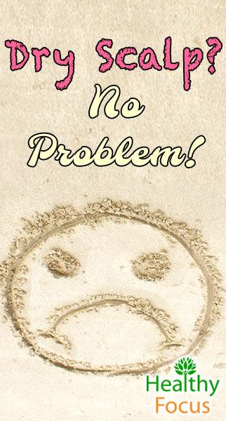 mig-dry-scalp-no-problem