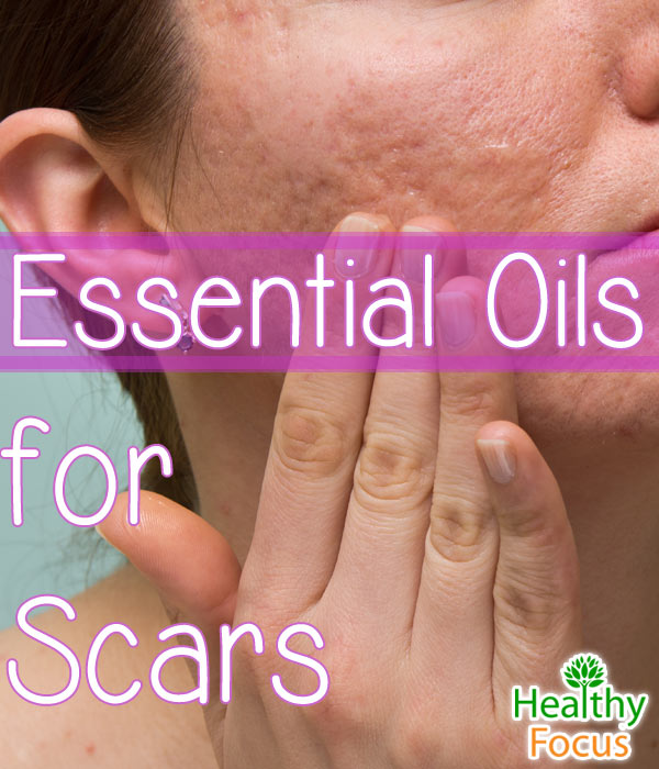 mig-Essential-Oils-for-Scars