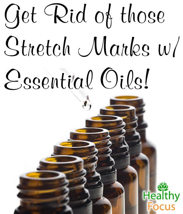 mig-Get-Rid-those-Stretch-Marks-Essential-Oils