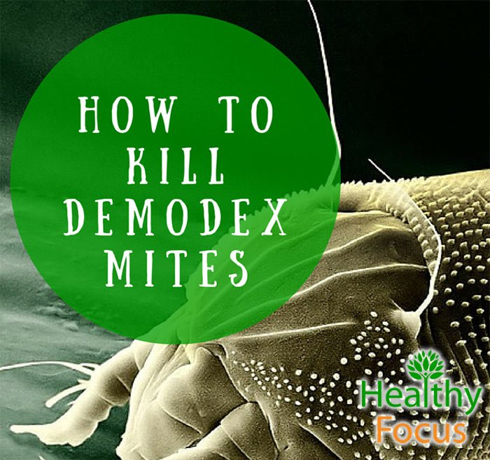 how to kill demodex mites