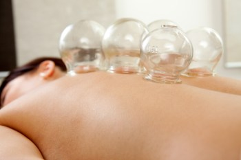 cupping therapy in portsmouth maine