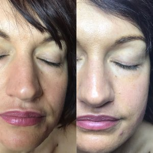 hollywood facelift in portsmouth maine
