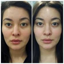 beforeafter luminesce1