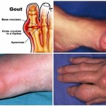 Say Goodbye To Gout Forever With This Powerful Natural Treatment!