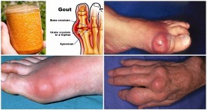 Say-Goodbye-To-Gout-Forever-With-This-Powerful-Natural-Treatment