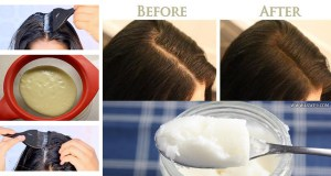 Thin To Thick Hair Magic, Grow Your Hair Fast Overnight With 1 Ingredient (Video)