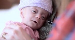Parents Adopt A Baby With No Brain ( Video )