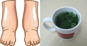 This Powerful Tea Is The Best Natural Remedy For Swollen Legs