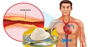 THE BEST MEDICINE AGAINST CHOLESTEROL AND HIGH BLOOD PRESSURE!