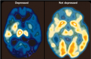 PET scans of the brain showing different activity levels in a person with depression, compared to a person without depression. (Source: Mayo Foundation for Education and Research [4])