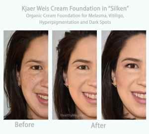"""Before and after photos of Kjaer Weis organic cream foundation in """"Silken"""" used to cover my dark spots, melasma, hyperpigmentation and vitiligo. I bought my foundation at the Detox Market in Santa Monica."""