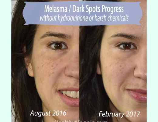 Picture of the melasma, hyperpigmentation and dark spot improvement on my face without harsh chemicals or hydroquinone.