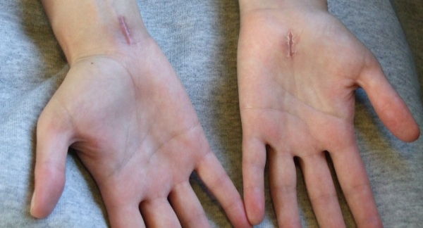 carpal_tunnel_scars