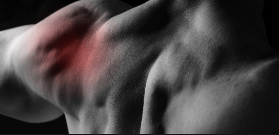 What You Need To Know About Weightlifters Shoulder