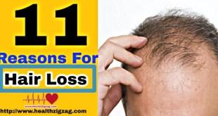 reasons for hair loss