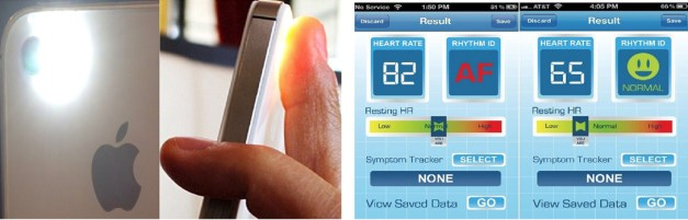 Afib on Iphone