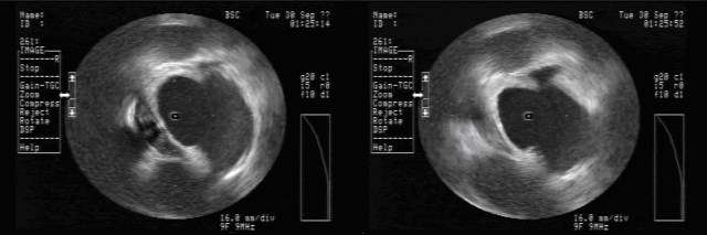 Intracardiac Echocardiography (ICE) of Orogastric Tube (OGT). The left image depicts the ICE signature of the OGT at ~8 o'clock. There is a small indentation in the posterior left atrial wall at the site of the OGT. On the right, ICE demonstrates the resolution of this indentation after removal of the OGT.